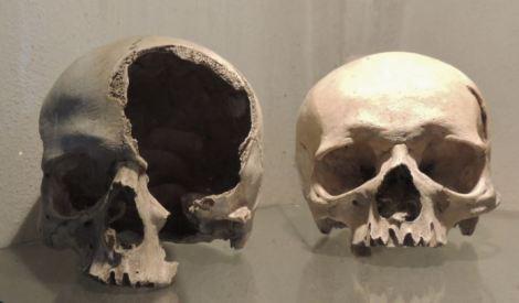 Sedlec Ossuary Skulls in Cabinet